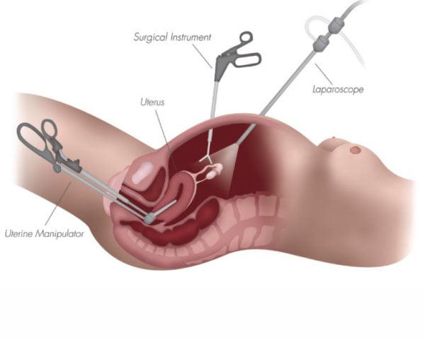 Λαπαρoσκοπική Υστερεκτομή