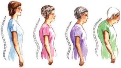 οστεοπόρωση ηλικίες εμφάνισης