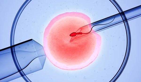 εξωσωματική γονιμοποίηση ivf